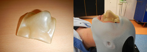 3D printing filter allows radiation therapy more effective